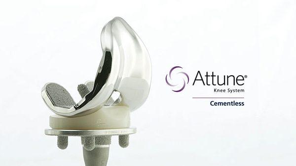 DePuy Orthopaedics' Attune Knee System