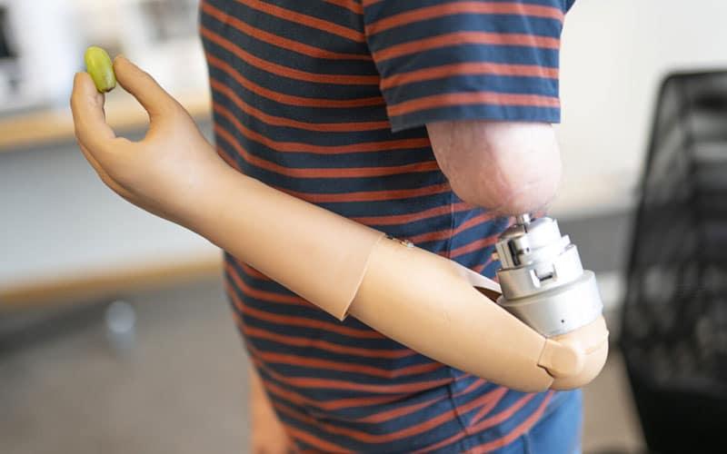 Prosthetic arm amputee