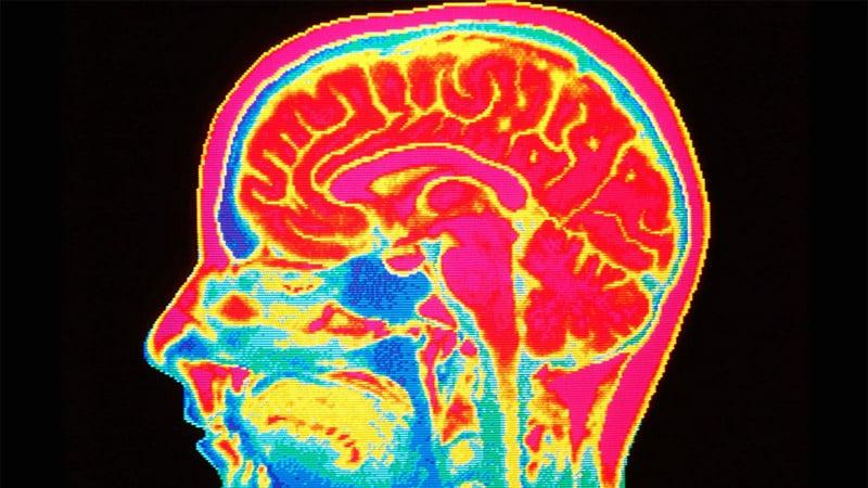 Brain injury scan